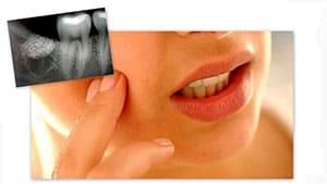 alveolit-posle-udaleniya-zuba-simptomy-3
