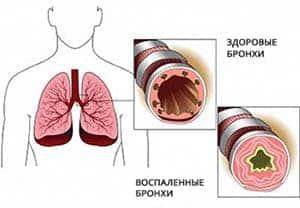 antibiotiki-pri-bronxite