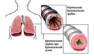 berut-li-v-armiyu-s-astmoj-2