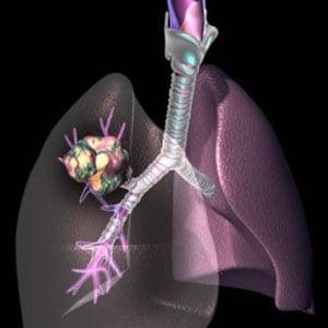 cimptomy-raka-legkix-u-muzhchin-3
