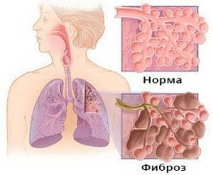 diffuznyj-pnevmofibroz