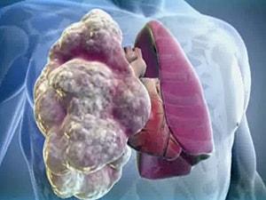 ekzogennyj-allergicheskij-alveolit-2