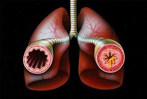endogennaya-bronxialnaya-astma-3