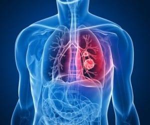 gnojnyj-bronxit