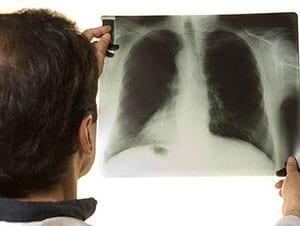 kak-mozhno-zarazitsya-tuberkulezom-3