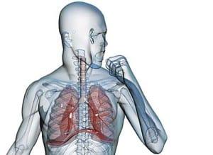 kashel-pri-bronxite-2
