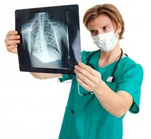kavernoznyj-fibrozno-tuberkulez-4