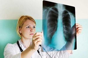 mozhno-li-umeret-ot-astmy-4