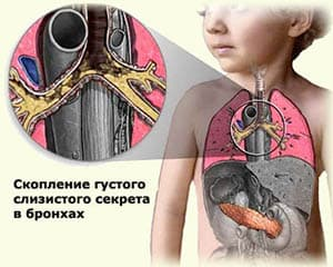 mukoviscidoz-u-detej2