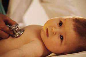 mukoviscidoz-u-novorozhdennyx2