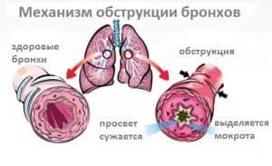 obstruktivnyj-bronxit1