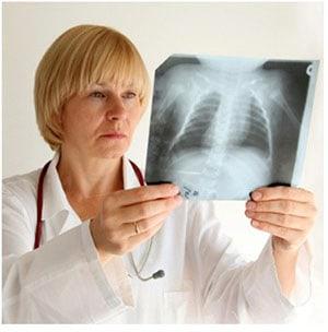 pervichnyj-tuberkuleznyj-kompleks-4