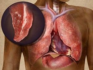 priznaki-i-lechenie-gnojnogo-plevrita-2