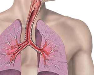 professionalnaya-bronxialnaya-astma-7