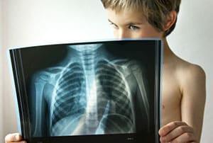 skolko-lezhat-v-bolnice-s-pnevmoniej-4