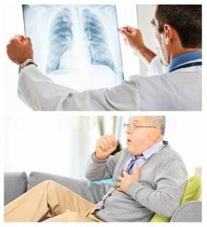 terapiya-bronxita