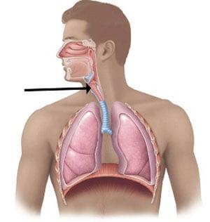 tuberkulez-gortani-4