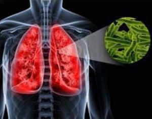 tuberkulez-legkix-2