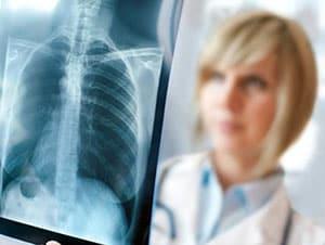 tuberkulez-legkix-3