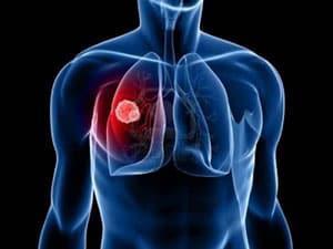 tuberkulez-legkix-6