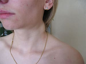 tuberkulez-limfouzlov-3