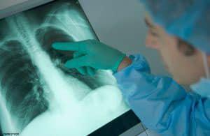 tuberkuleznyj-plevrit-2