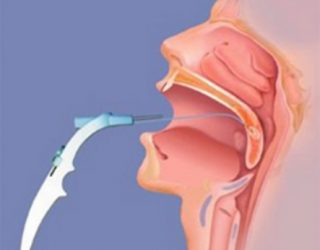 Эффективно ли лечение тонзиллита лазером или нет