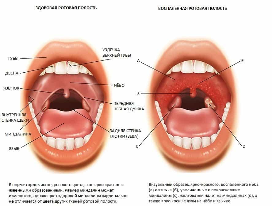 Чем отличается тонзиллит от других болезней горла
