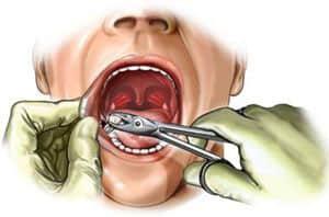 alveolit-posle-udaleniya-zuba-simptomy-2