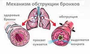 antibiotiki-pri-bronxite2