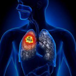 Лечение кашля без температуры у ребенка
