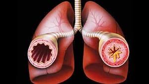bronxialnaya-astma-atopicheskaya-5