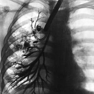 bronxoektazy-v-legkix1