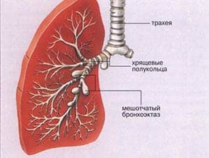 bronxoektazy-v-legkix3