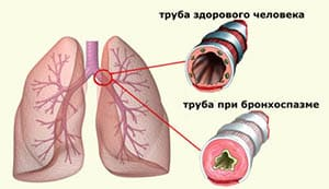 bronxospazm-u-detej