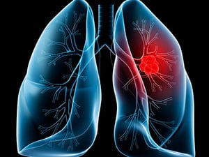 chto-takoe-metastazy-pri-rake-2