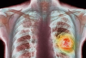 Метастазы при раке - что это такое и на какой стадии появляются