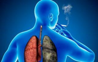 Признаки эмфиземы легких и современные методы лечения