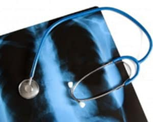 esli-v-klasse-zabolel-tuberkulezom-3