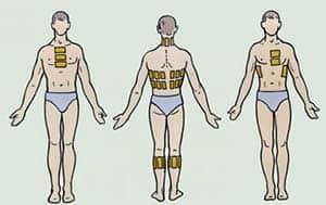 Как правильно прогревать грудную клетку при бронхите