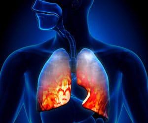 infekcionnaya-pnevmoniya-2
