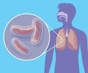 infiltrativnyj-tuberkulez-3