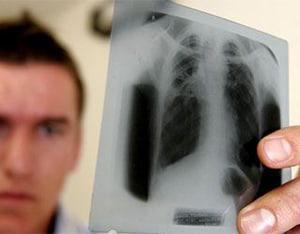 infiltrativnyj-tuberkulez-4