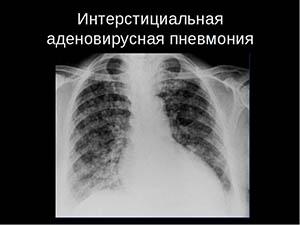 intersticialnaya-pnevmoniya1