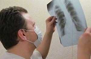 kostnyj-tuberkulez-4
