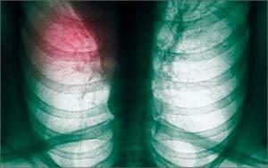 lechenie-raka-legkix-narodnymi-sredstvami5