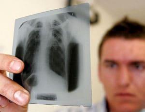 lechenie-tuberkuleza-narodnymi-sredstvami-v-domashnix-usloviyax-3