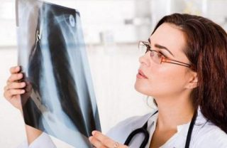 Симптомы бронхоэктатической болезни легких и лечение