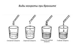 mokrota-pri-bronxite1