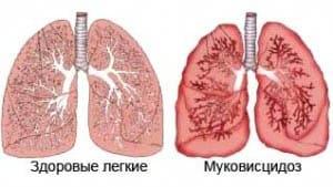 mukoviscidoz-u-detej1